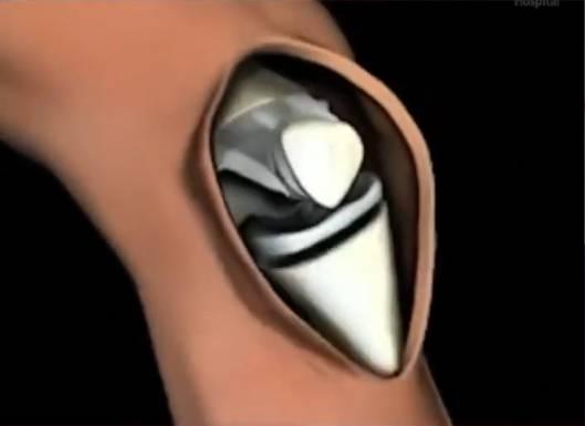 Stitch-less knee replacement in chandigarh mohali Panckula