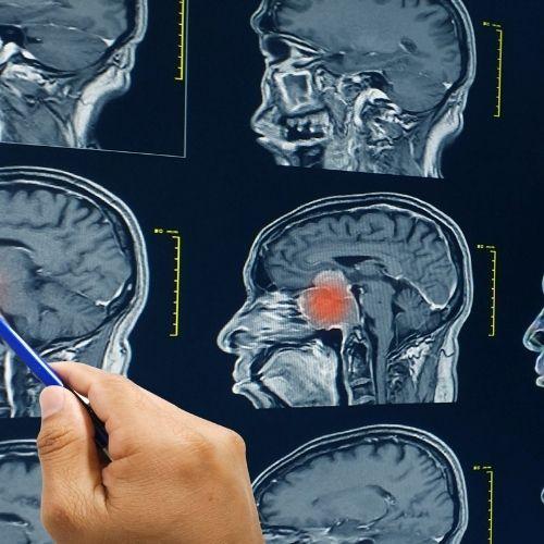 Brain Abscess - Post
