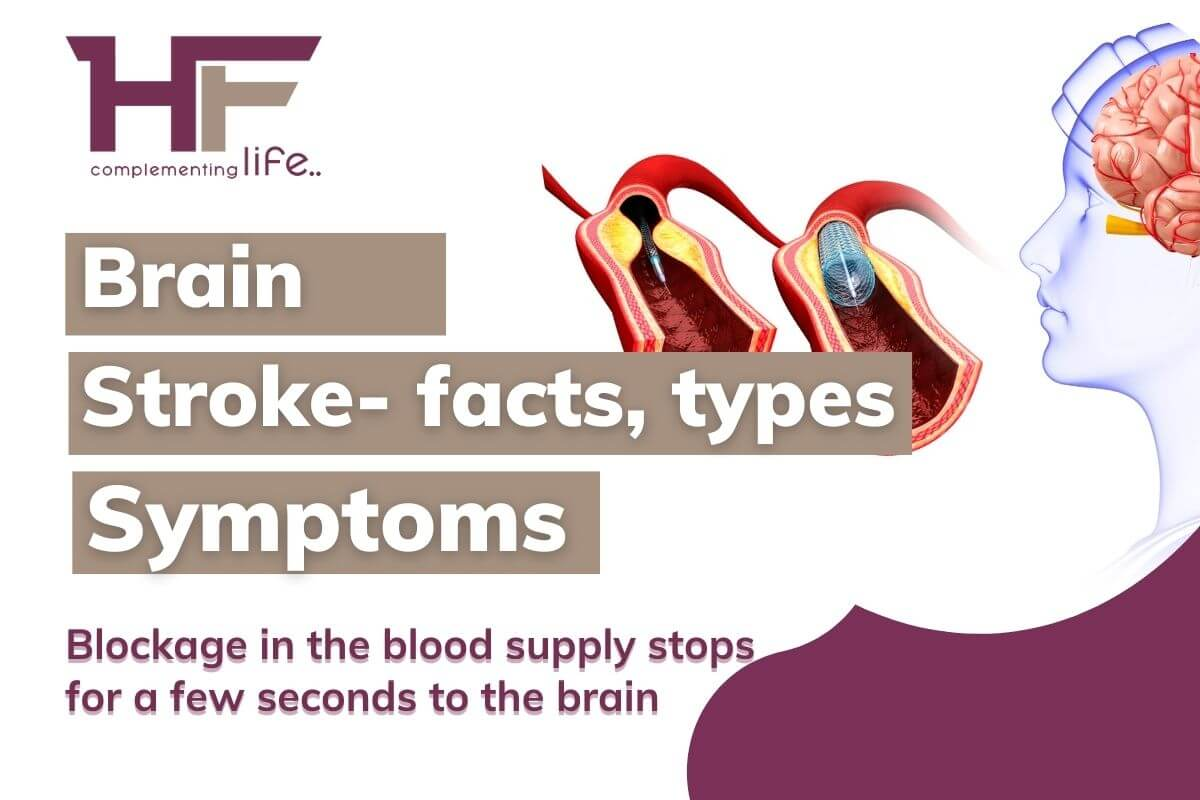 Brain stroke types, facts causes, symptoms, diagnosis, and treatment
