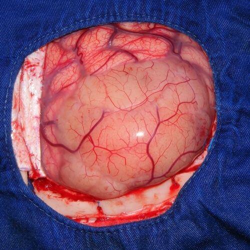 BrainStroke- Symptoms