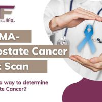 PSMA PET Scan- Is this a way to determine Prostate Cancer?