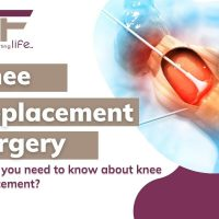 What to Expect After Knee Replacement Surgery – Everything You Need To Know