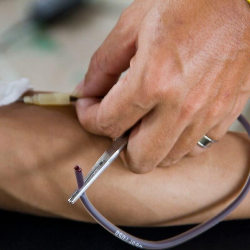 Gallbladder-less-blood-loss