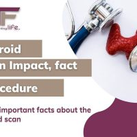 Some important facts about the thyroid scan